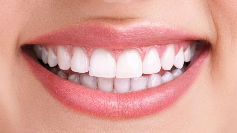 PZR & Bleaching – Das ideale Duo für strahlend weisse Zähne